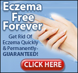 Eczema Free You - Updated For 2018!