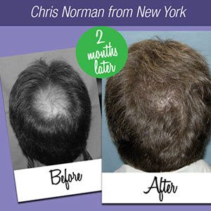 Holistic Solution to get rid of Hair Loss
