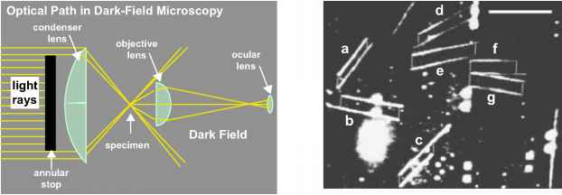 Dark Field Microscopy