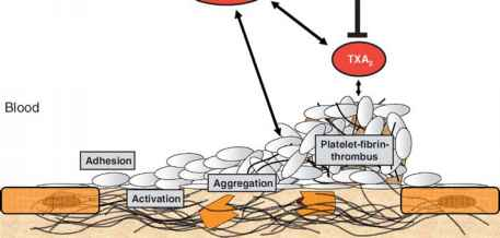 Thrombus And Aspirin And Platelets